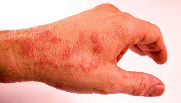 Alternative-Treatments-for-Ganglion-Cyst-Removal.-Irritation-from-the-Patch, ganglioncysttreatment.com
