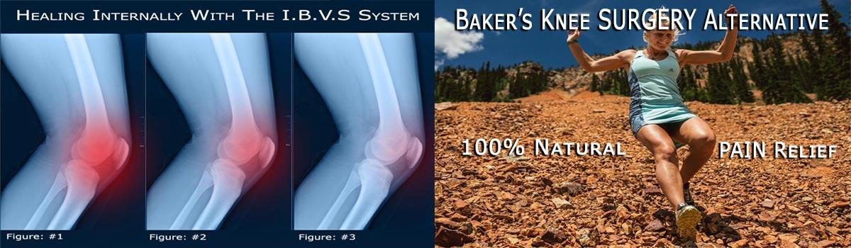 Baker's Knee Cyst SURGERY Alternative B-Relief SUPER Caps INFO:bakerstreatment.com