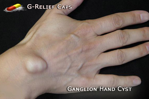 How to Remove Ganglion Hand Cysts. G-Relief Caps.