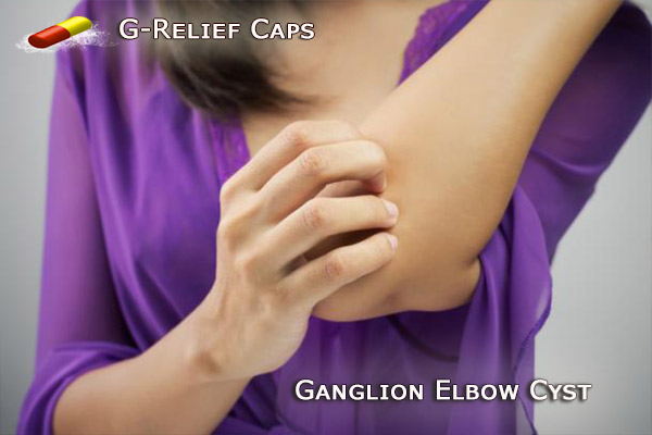 Ganglion Elbow Cyst Alternative to SURGERY