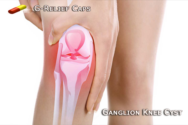 Ganglion Knee Cyst SURGERY Alternative G-Relief Caps