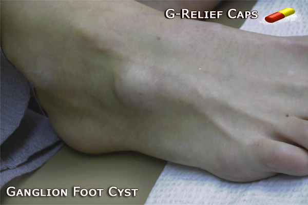 Ganglion Foot Cure G-Relief Caps