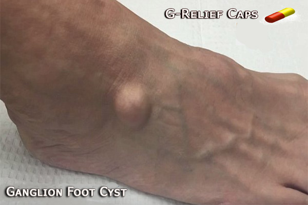 Ganglion Cyst Foot SURGERY Alternative G-Relief Caps Stops the Pain: INFO g-relief.com