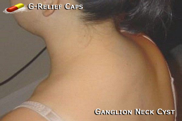 Ganglion-Neck-Cyst-G-Relief-Caps All Natural Treatment