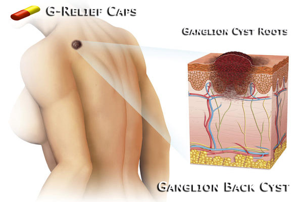Ganglion-Back-Cyst-G-Relief-Caps All Natural Remedy
