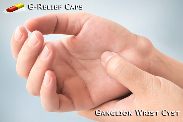 Ganglion-Wrist-Cyst-Cure with G-Relief-Caps