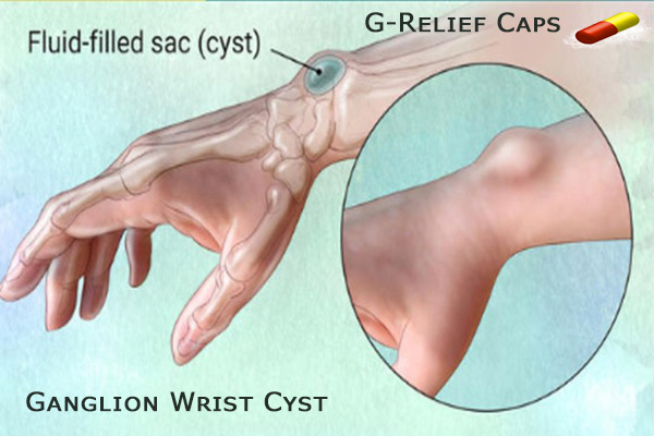 Heal Ganglion-Wrist-Cyst with G-Relief-Caps
