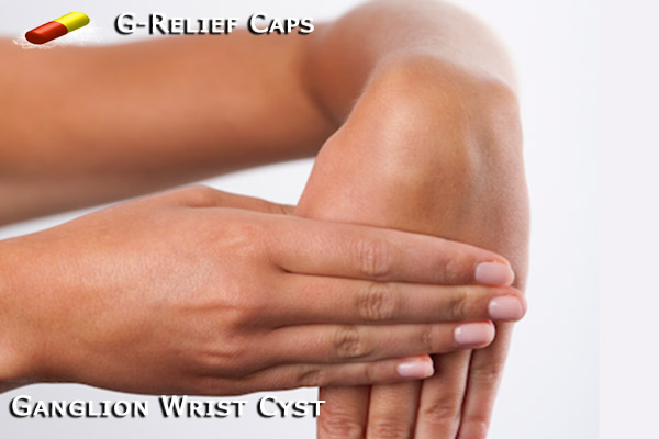 G-Relief Caps Natural Remedy for Ganglion Wrist Cysts