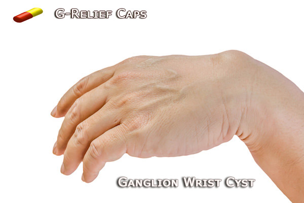 Ganglion Wrist Cyst Cure G-Relief Caps, Alternative to Surgery