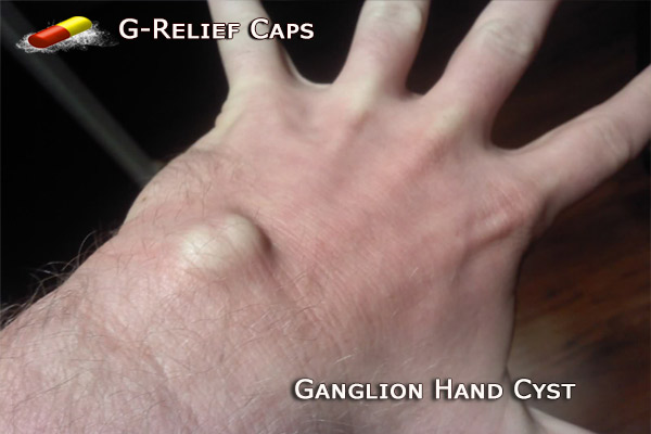 How to Naturally Remove Ganglion Hands