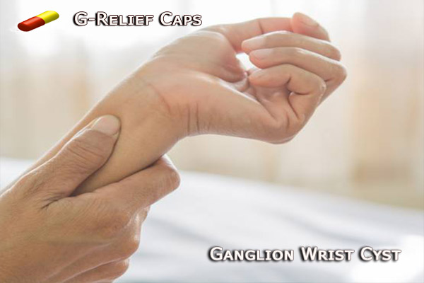 Remove Ganglion Wrist Cyst with G-Relief Capsules